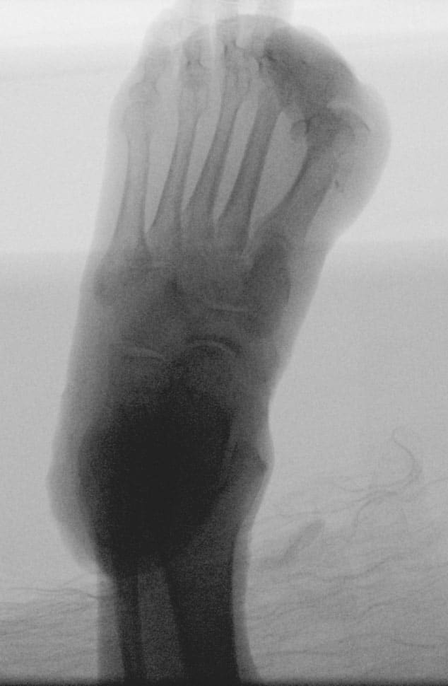 Here is an AP radiograph of the left foot.