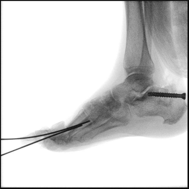 An intraoperative fluoroscopy view demonstrates the harvest of the tricortical cancellous calcaneal graft with subsequent back filling via allogenic bone and screw fixation to prevent fracture.
