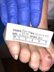 A clinical photo from 5/22/20 shows a healed fourth right toe ulcer.