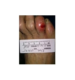 This 2/28/20 photo shows an ulceration of the fourth right toe.