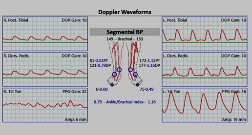 A Doppler ultrasound exam from that evaluation revealed an ankle brachial index (ABI) on the right foot of 0.79, but it was deemed inaccurate secondary to calcific sclerosis.