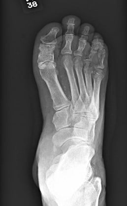 Radiographic imaging of the right foot showed diffuse soft tissue swelling with intermixed lucencies suggestive of soft tissue gas, and bony destructive changes involving the fourth digit proximal phalanx and likely the adjacent fourth metatarsal head. There were also questionable bony destructive changes of the adjacent fifth digit proximal that were highly suspicious for osteomyelitis.