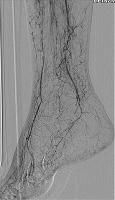 An angiogram revealed 100 percent occlusion of the right distal posterior tibial artery with reconstitution from peroneal collaterals, and severe small vessel disease in the dorsalis pedis and posterior tibial artery branches.