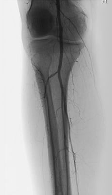 An angiogram revealed mild to moderate superficial femoral artery stenosis with 100 percent occlusion of the right proximal anterior tibial artery with distal reconstitution from peroneal collaterals.