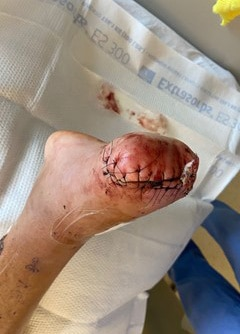 The incision on the medial and distal aspect of the TMA site is well-coapted without dehiscence or drainage with no signs of infection.