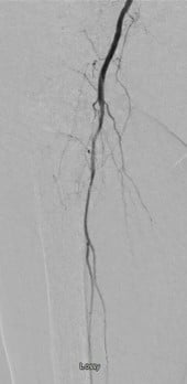 This post-intervention view demonstrates in-line flow of the posterior tibial and peroneal arteries.