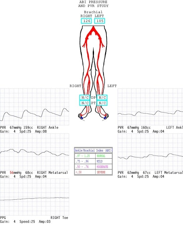 The pulse volume recording (PVR) waveforms were blunted in both the anterior tibial (AT) and posterior tibial (PT) distributions. The PVR waveforms in the first toe were flat, indicating severe distal/pedal disease.
