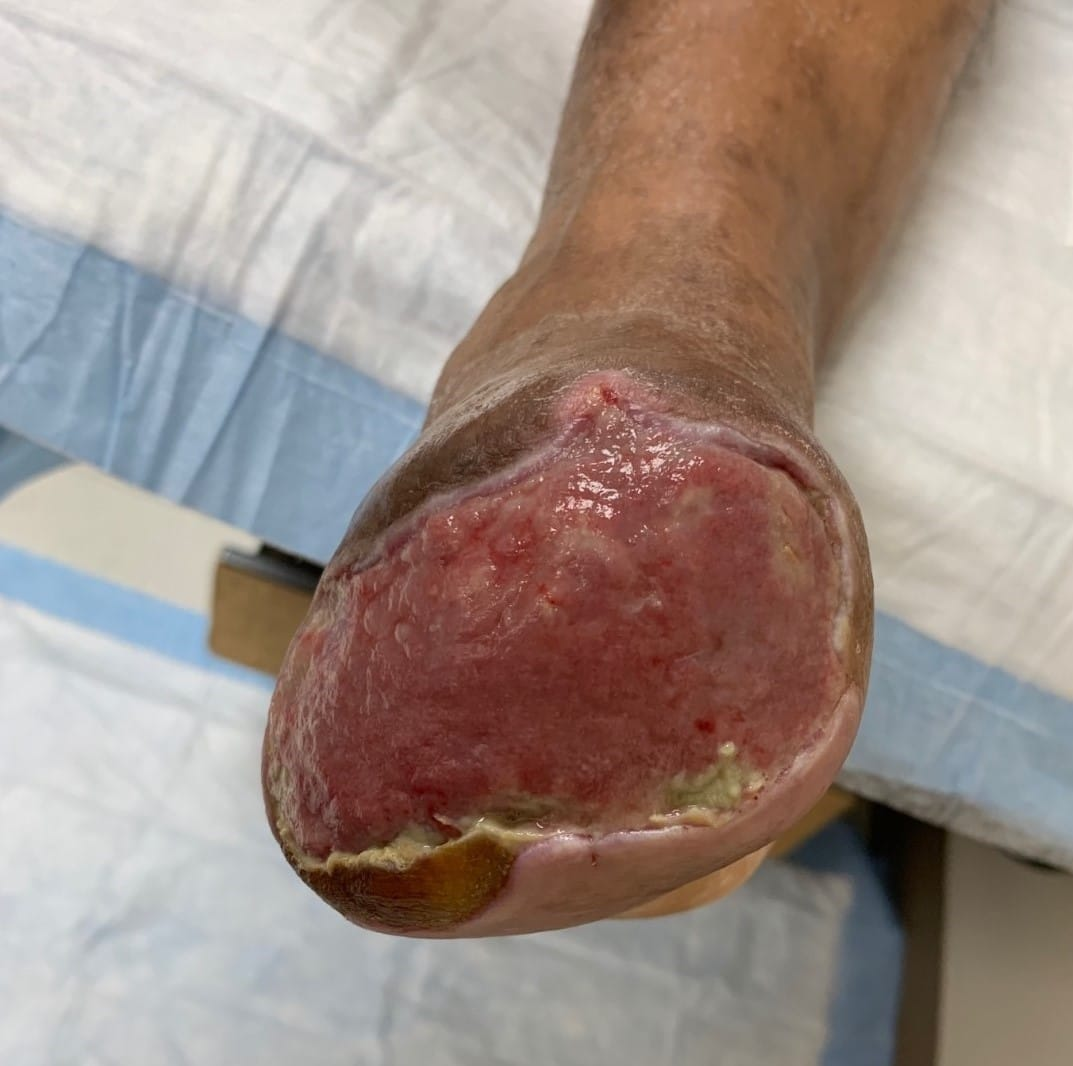The patient had NPWT for four weeks until the development of a granulation wound bed that would support a split-thickness skin graft (see above photo).