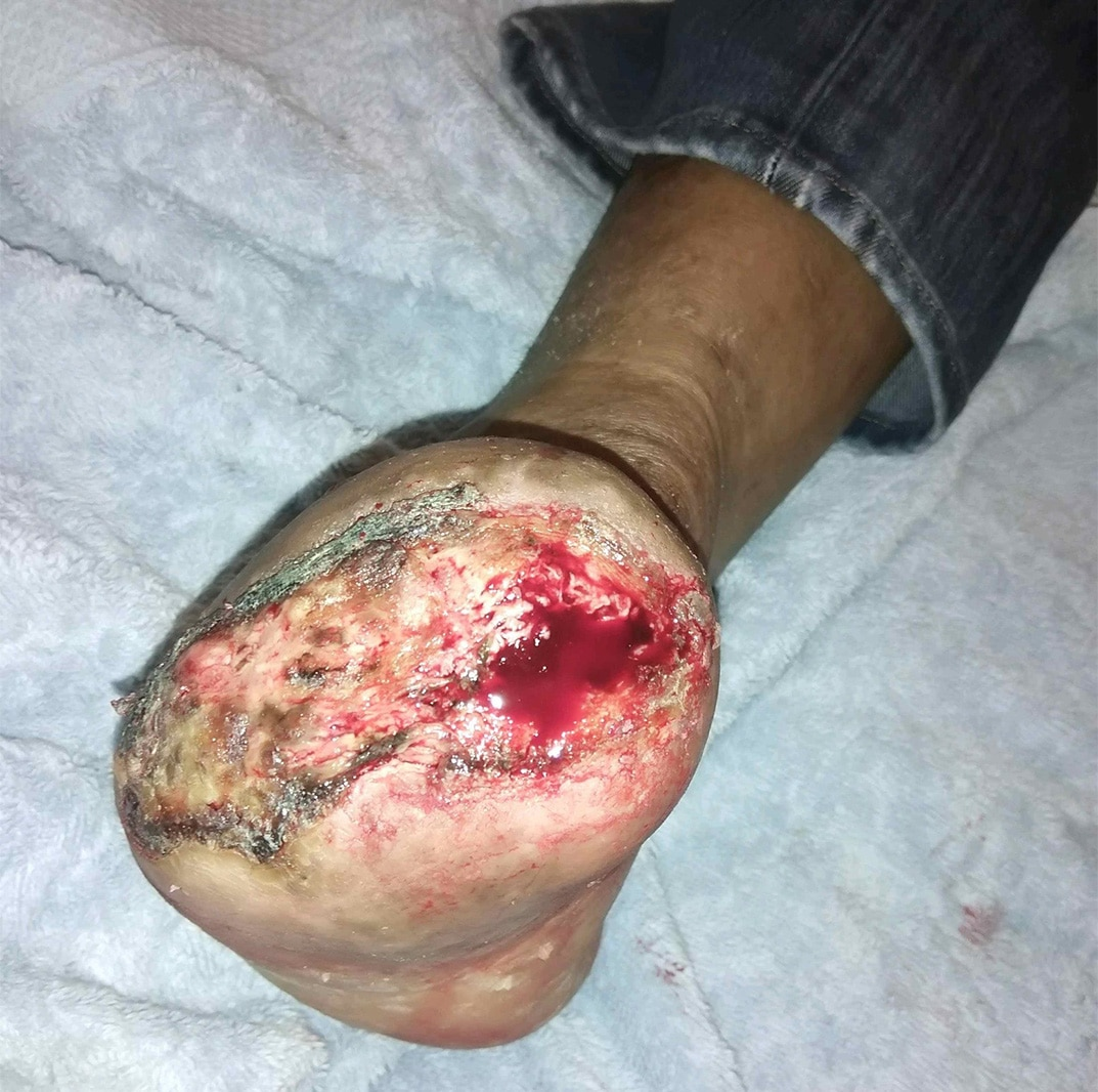 Here one can see initial incorporation of the skin graft in the wound, which still required periodic debridement.