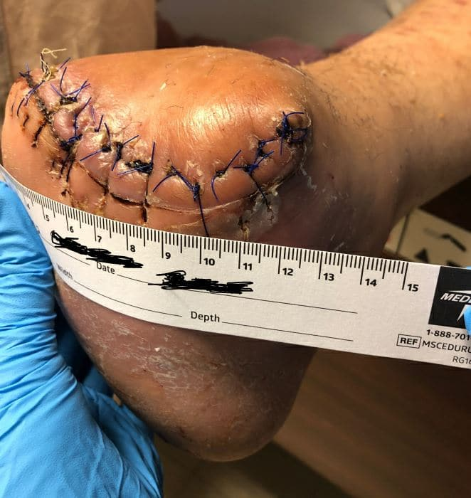 After undergoing a femoral to posterior tibial bypass with great saphenous vein, the patient had a definitive Chopart's amputation. At three weeks post-op, the patient had complete healing of all surgical incisions and no wound dehiscence.