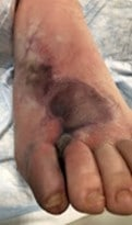 Here is an image of the right foot at the initial presentation.