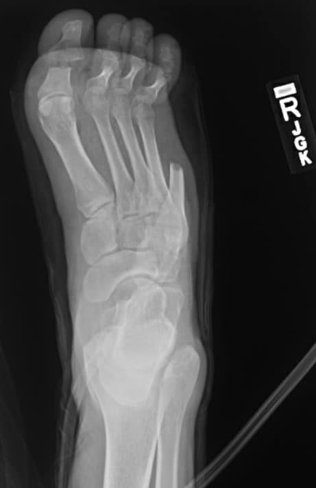 Note the anteroposterior X-ray view of the right foot after hospital transfer and secondary debridement.