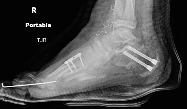 Note the lateral X-ray image of the right foot immediately following cavus foot reconstruction.