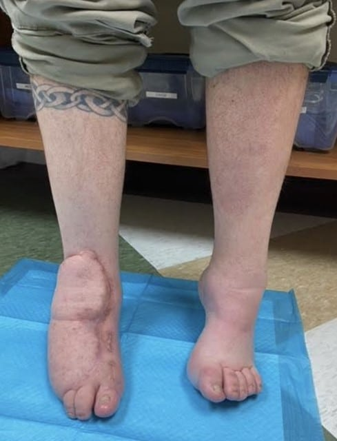 Here one can see the right foot at an 18-month clinic follow-up visit.