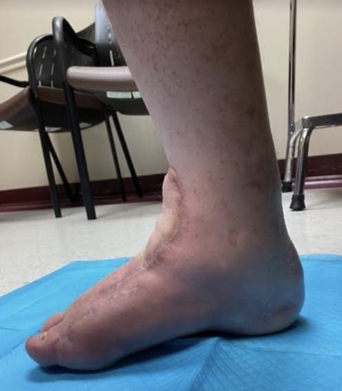 Here one can see the right ankle at the 18-month clinic follow-up visit.