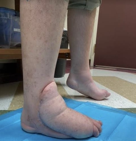 Here one can see the right foot and ankle at the 18-month clinic follow-up visit.