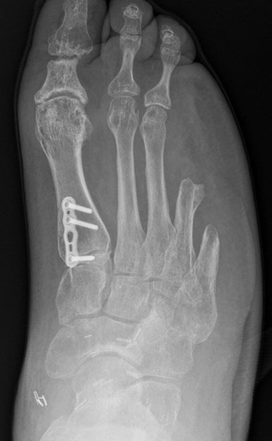Here is an anteroposterior X-ray view at the 18-month follow-up visit that demonstrates restoration of the plantigrade angle and talar first metatarsal axis.